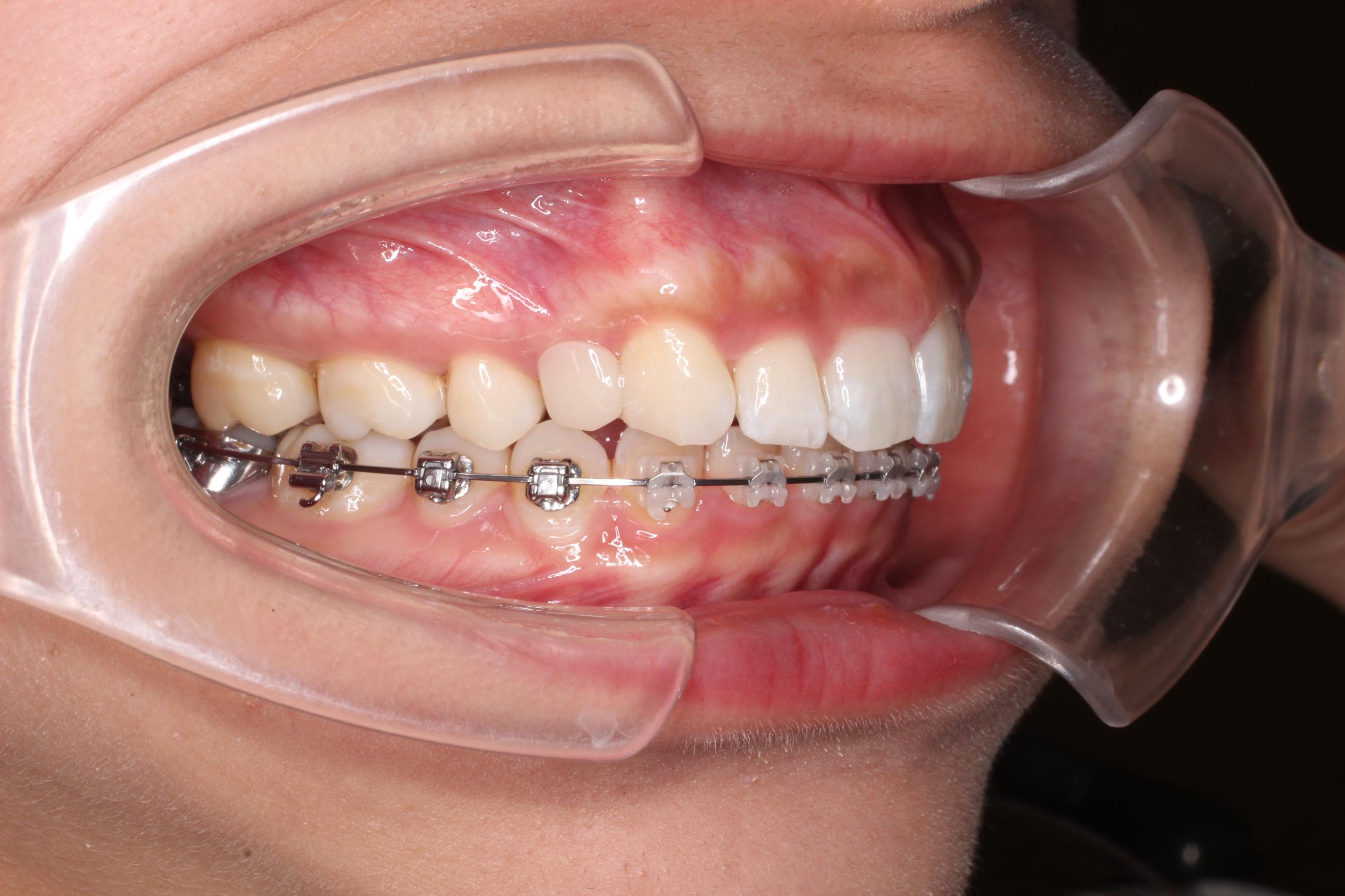 歯科 恵比寿 エスト 矯正